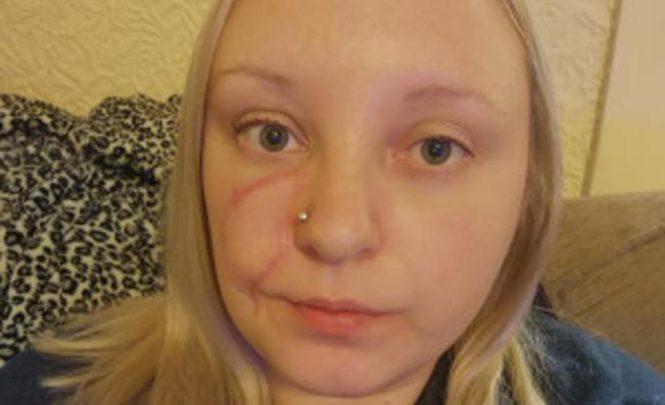 Nakon 30 godina ožiljak od ospica pretvorio joj se u rak kože!